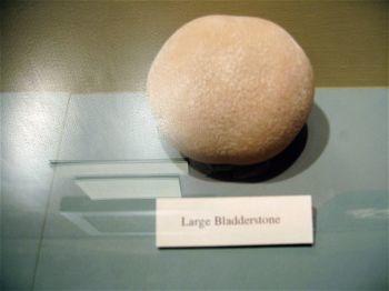 bladder_stone.jpg